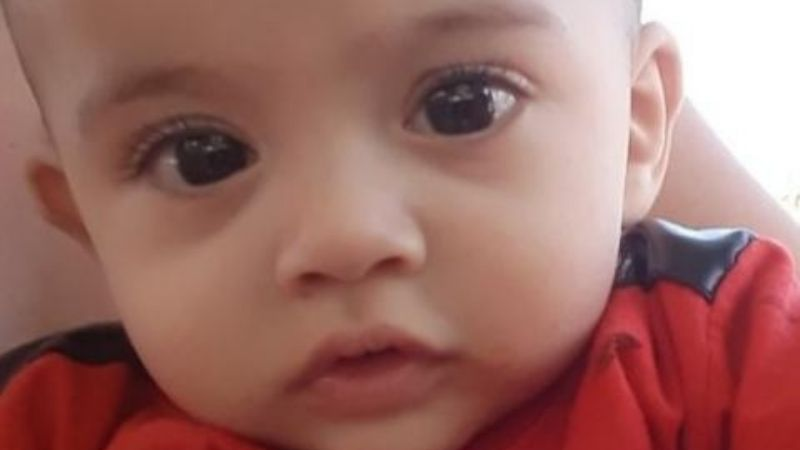 Maximo tienen 11 meses, padece fibrosis quisitica y necesita ayuda para trasladarse por sus tratamientos